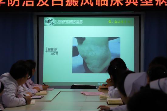 北京国丹白癜风医院开展白癜风的冬季科学防治